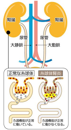 尿中のタンパク質が治る